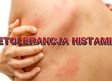 Nietolerancja histaminy – kompendium wiedzy