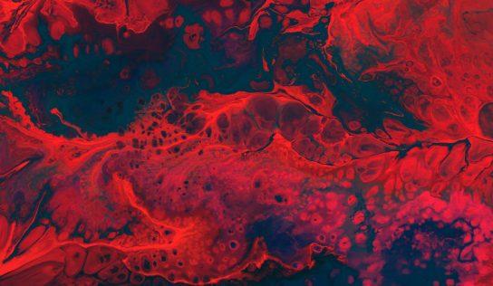 Anemia – objawy, dieta, leczenie niedokrwistości