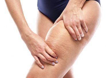 Cellulit – rodzaje, jak powstaje i jak się go pozbyć