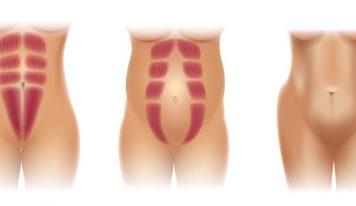 Rozejście mięśnia prostego brzucha, kresy białej i przepuklina. Czy da się to ogarnąć?
