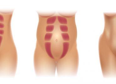 Rozejście mięśnia prostego brzucha, kresy białej i przepuklina. Czy da się to naprawić?