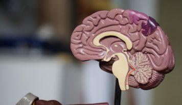 Krążenie krwi w mózgu i sposoby jego polepszenia